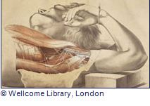 doctors, dissection and ressurection men exhibition at the London Museum